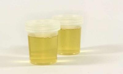 Nhật Bản thử nghiệm kiểm tra ung thư qua các mẫu nước tiểu